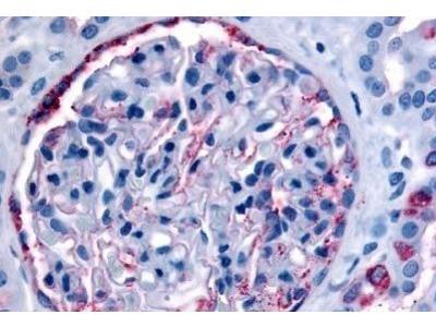 Rabbit Polyclonal PIB5PA Antibody