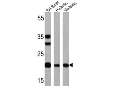 Presenilin-1 Antibody (APS 11)