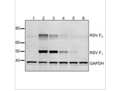 Respiratory Syncytial Virus Antibody (2F7)