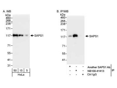 SAPS1 Antibody