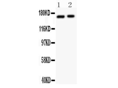 Anti-NMDAR2A/GRIN2A Antibody