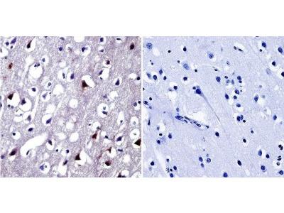 NFAT5 Antibody