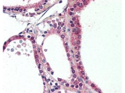 NR1D2 Antibody