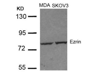 Ezrin (Ab 353) Antibody