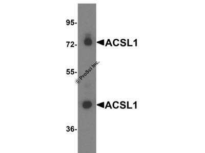 ACSL1 Antibody