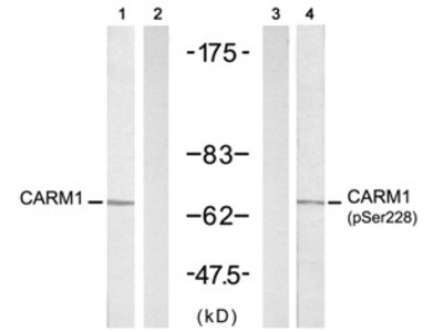 CARM1 (Ab 228) Antibody