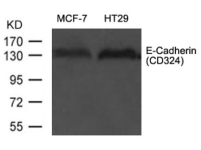E Cadherin (CD324) Antibody