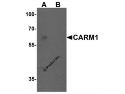 CARM1 Antibody