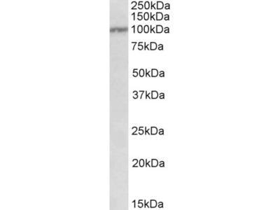 IL12RB1 Antibody