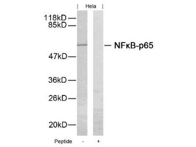 NFkB p65 (Ab 276) Antibody