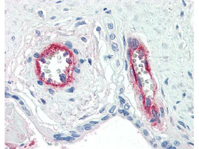 Factor VIII Antibody [F8 2.2.9]