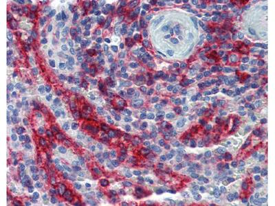 HLA-E Antibody [MEM-E/06]