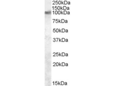 TRPV2 Antibody