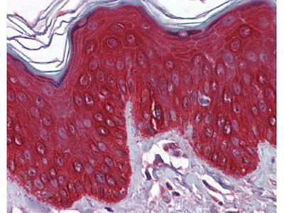 Cytokeratin 17 Antibody [2D4-1G9]
