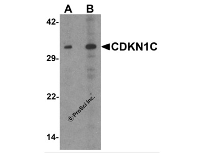 CDKN1C Antibody