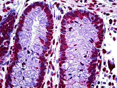 CDKN2A Antibody [1E12E10]