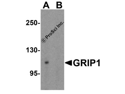 GRIP1 Antibody