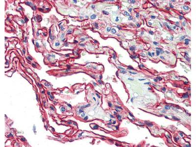 S100A10 Antibody, Monoclonal