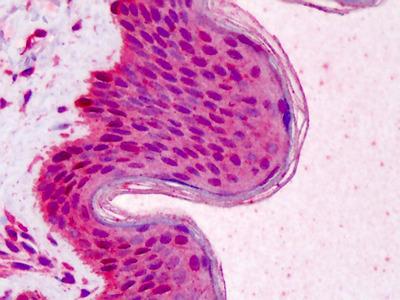 RAD51 Antibody [13E4]