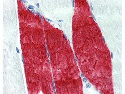 Troponin I Antibody [12F10]