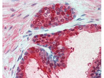 CMPK1 Antibody [1D7]