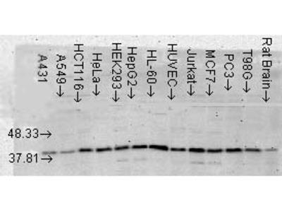 p38 alpha MAPKinase Antibody