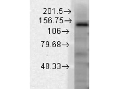 SLACK potassium channel Antibody
