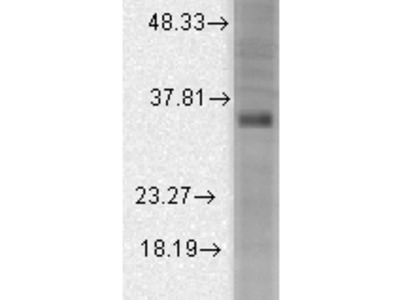 BK channel BETA3 Antibody