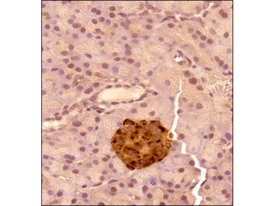 Chromogranin A Antibody