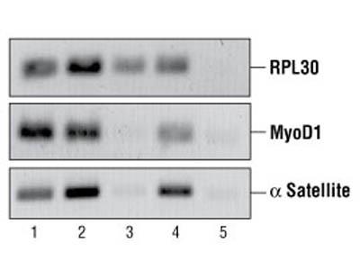 ChIP-Grade Protein G Agarose Beads