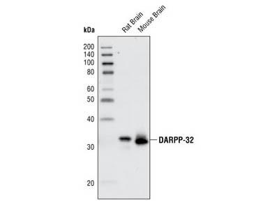 DARPP-32 (19A3) Rabbit mAb