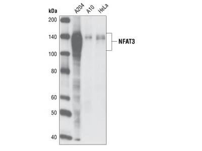 NFAT3 (23E6) Rabbit mAb