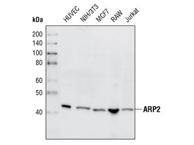 Chemokine Response on ARP2 Expression in Smooth Muscle Cells
