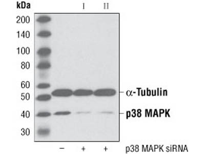 Expression of p38 in Microglia Cells