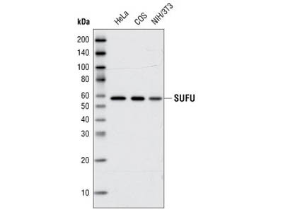 SUFU (C81H7) Rabbit mAb
