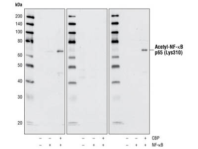 Western Blot for P65 (NF-kB) K310 Acetylation Stem Cells Whole Cell Lysate