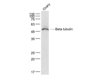 tubulin Beta Antibody, ALEXA FLUOR® 555 Conjugated