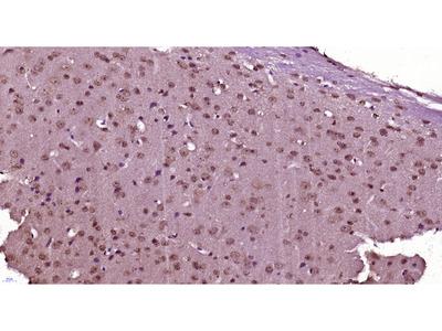 SRRM4 Antibody