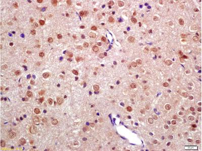 TNIP2 Antibody