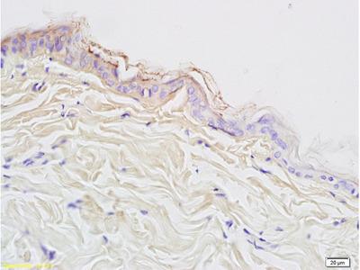 Cytokeratin 10 Antibody, ALEXA FLUOR® 488 Conjugated