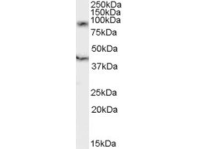 Goat Polyclonal DAP10 / HCST Antibody