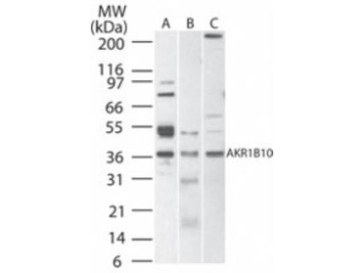 Aldo-keto Reductase 1B10 / AKR1B10 Antibody