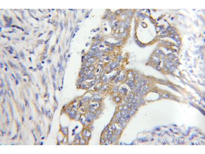 CHPF C-terminal Polyclonal Antibody