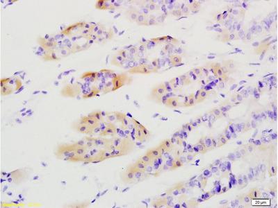 Tenascin C Antibody, ALEXA FLUOR® 555 Conjugated