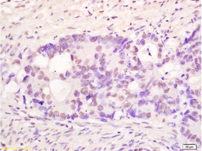 PMS1 Antibody