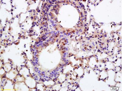APPD Polyclonal Antibody