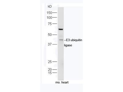 E3 ubiquitin ligase Antibody