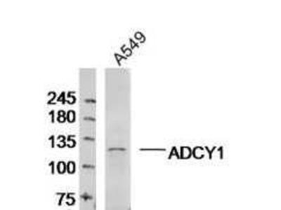 ADCY1 Antibody, ALEXA FLUOR® 350 Conjugated