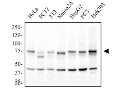 Mouse Monoclonal IKK alpha Antibody