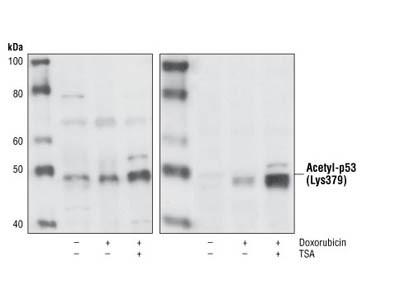 Acetyl-p53 (Lys379) Antibody
